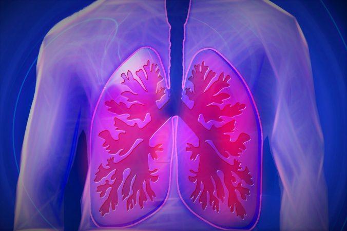 lung disease